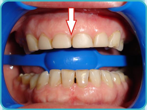 неправильная реставрация зуба