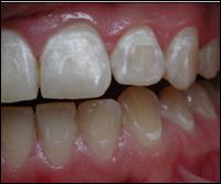 белые пятна на зубах после брекет-системы