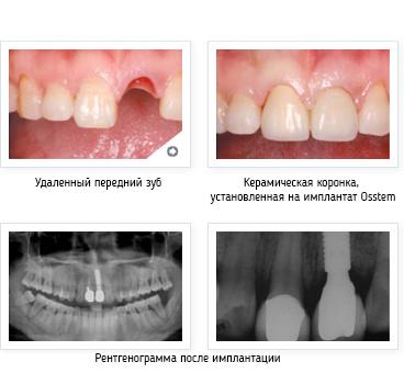 http://www.gelio-a.ru/upload/userfiles/file/denntumclinic/osstem11.jpg