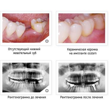 http://www.gelio-a.ru/upload/userfiles/file/denntumclinic/osstem44.jpg