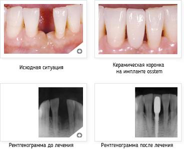 http://www.gelio-a.ru/upload/userfiles/file/denntumclinic/osstem6%20%D0%BA%D0%BE%D0%BF%D0%B8%D1%8F.jpg