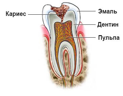 кариес зуба