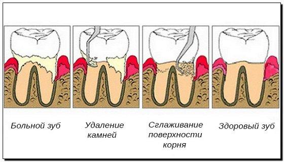 этапы пародонтологической чистки