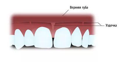 пластика короткой уздечки верхней губы