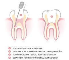 пломбирование каналов зуба