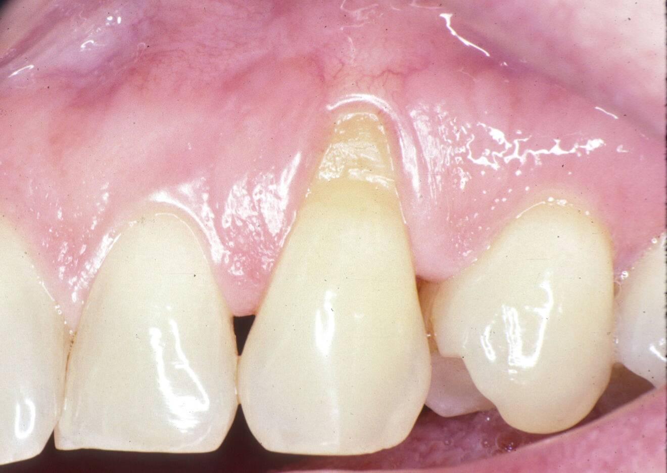 рецессия десны в области клыка на врехней челюсти