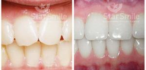 лечение скученности зубов