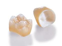 Снятие коронок с зубов