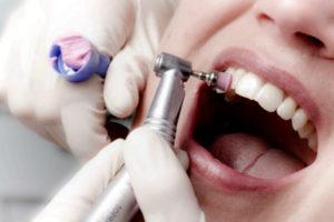 полировка зубов при снятии брекетов