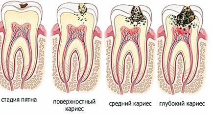 стадии кариеса зуба