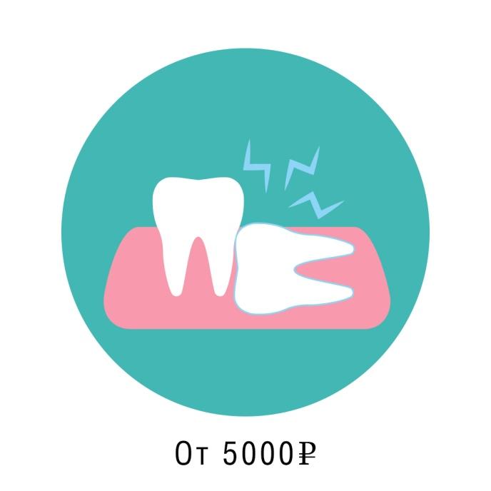 удаление зуба мудрости сложное