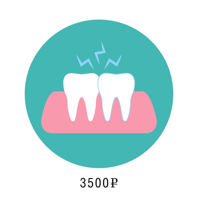 Удаление зуба мудрости средней сложности
