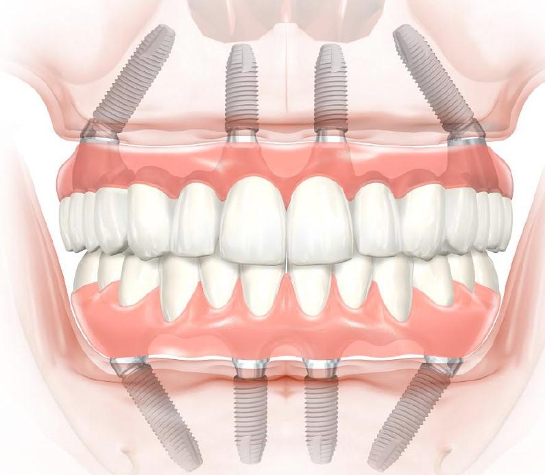 восстановление зубов по методике all-on-4