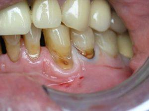 Клиновидный дефект нижних зубов