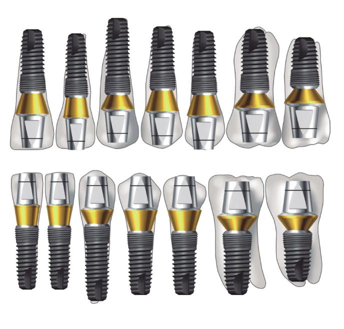 Зубные импланты Имплантиум