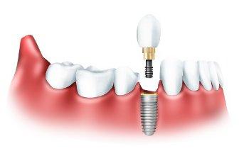 10 частых вопросов об имплантации зубов