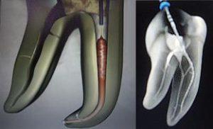 строение корневых каналов зуба