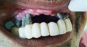осложнение после имплантации